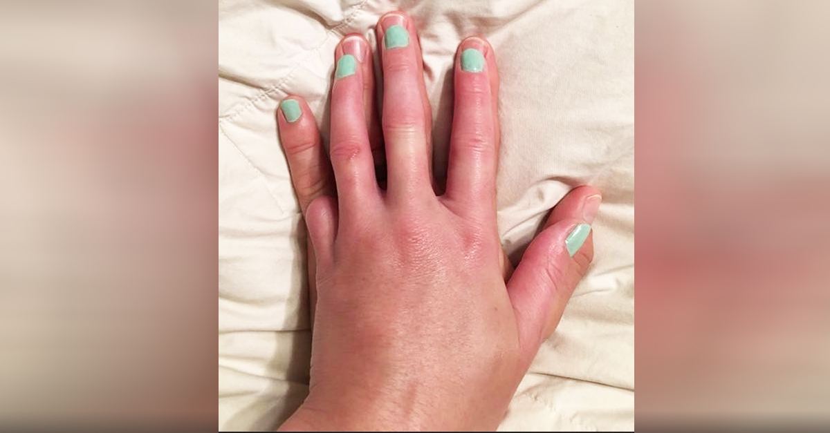 Husband Snaps Photo Of Wifes Hand, But People Notice She ...